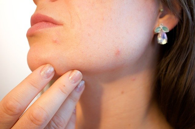 The Pitfalls of Online Acne Treatment Services