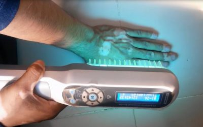 Narrowband UVB Phototherapy: Shine that Light!