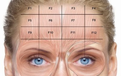 Do Not Take The Risk of Using an Unqualified Professional for Botox Injections